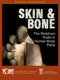 Skin & Bone: The shadowy trade in human body parts
